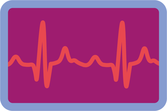 illustration of an electrocardiogram